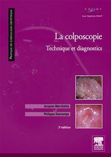 La colposcopie - Technique et diagnostics - 9782294718281 - 44,99 €