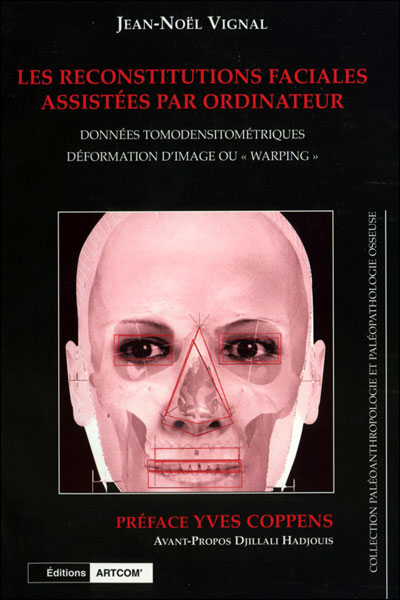 Reconstitutions faciales assistees par ordinateur