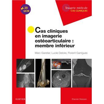 Cas cliniques en imagerie ostéoarticulaire : membre inférieur