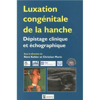 Luxation congénitale de la hanche dépistage clinique et ...