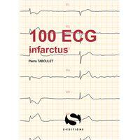 100 ecg infractus