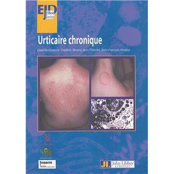 Urticaire chronique - broché - Collectif, Jean Thivolet, Jean ...