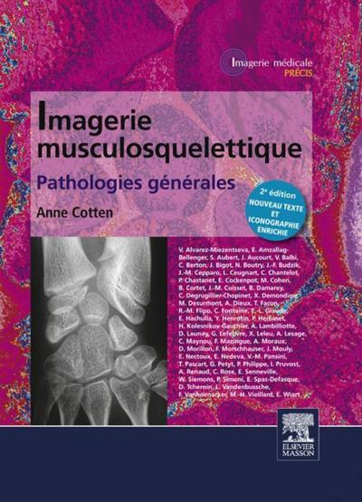 Imagerie musculosquelettique - Pathologies générales - 9782294736582 - 149,99 €