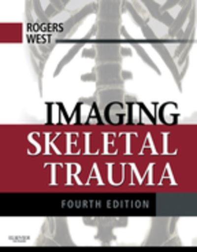 Imaging skeletal trauma