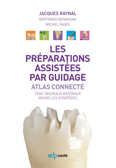 Preparations assistees par guidage, atlas connecte