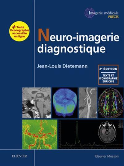 Neuro-imagerie diagnostique - 9782294754777 - 140,41 €