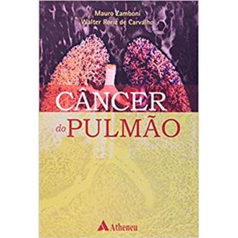 Câncer do Pulmão
