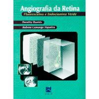 Angiografia da Retina