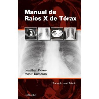 Manual de Raios-X de Tórax