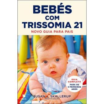 Bebes com Trissomia 21
